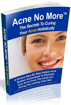 cover of a woman on the book of Acne no More